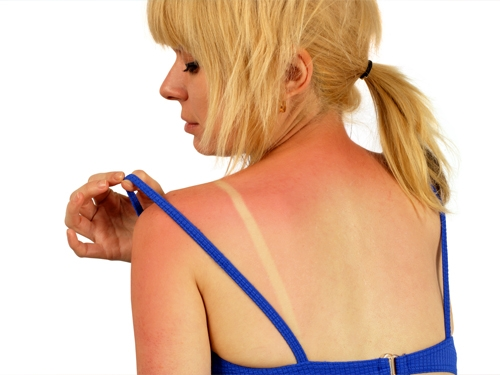 Изгаряне на раменете