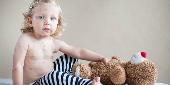 Дете болно от Варицела