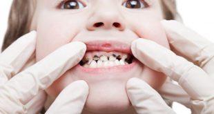 Потъмняване и кариес на млечните зъбки при децата