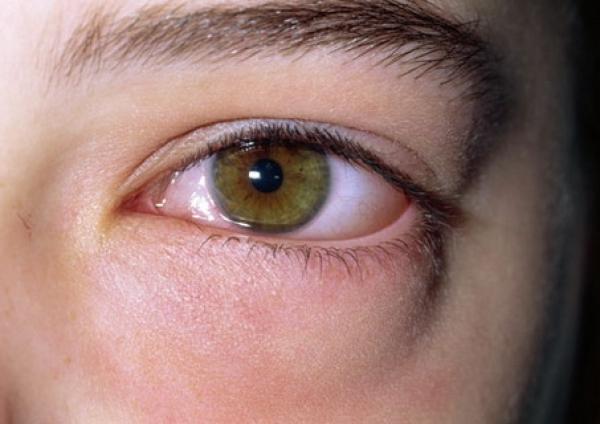 Подуване на очите