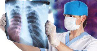 Малигнен мезотелиом – коварно професионално заболяване